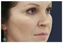 Dermal Fillers After Photo by Michael Law, MD; Raleigh, NC - Case 35750