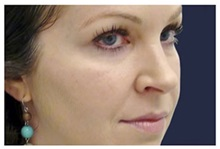 Dermal Fillers Before Photo by Michael Law, MD; Raleigh, NC - Case 35750