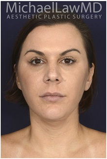Facelift After Photo by Michael Law, MD; Raleigh, NC - Case 35754