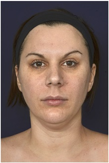 Facelift Before Photo by Michael Law, MD; Raleigh, NC - Case 35754