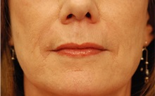 Dermal Fillers After Photo by Michael Law, MD; Raleigh, NC - Case 35755