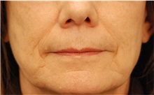Dermal Fillers Before Photo by Michael Law, MD; Raleigh, NC - Case 35755