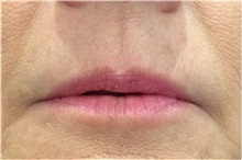 Dermal Fillers Before Photo by Michael Law, MD; Raleigh, NC - Case 35757