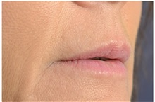 Dermal Fillers After Photo by Michael Law, MD; Raleigh, NC - Case 35757