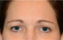 Botulinum Toxin After Photo by Michael Law, MD; Raleigh, NC - Case 35760