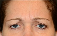 Botulinum Toxin Before Photo by Michael Law, MD; Raleigh, NC - Case 35760