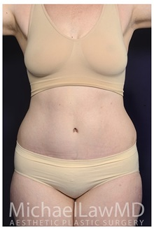 Tummy Tuck After Photo by Michael Law, MD; Raleigh, NC - Case 35795