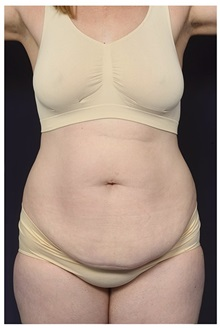 Tummy Tuck Before Photo by Michael Law, MD; Raleigh, NC - Case 35795