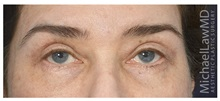 Eyelid Surgery After Photo by Michael Law, MD; Raleigh, NC - Case 35806