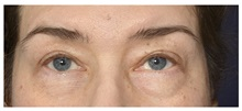 Eyelid Surgery Before Photo by Michael Law, MD; Raleigh, NC - Case 35806