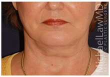 Chin Augmentation After Photo by Michael Law, MD; Raleigh, NC - Case 35813