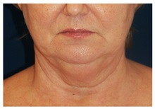 Chin Augmentation Before Photo by Michael Law, MD; Raleigh, NC - Case 35813