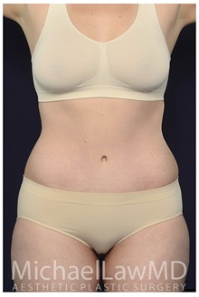 Tummy Tuck After Photo by Michael Law, MD; Raleigh, NC - Case 35816