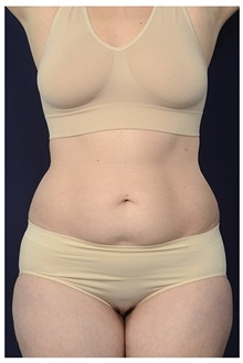 Tummy Tuck Before Photo by Michael Law, MD; Raleigh, NC - Case 35816