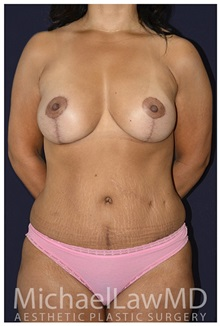 Body Contouring After Photo by Michael Law, MD; Raleigh, NC - Case 35835