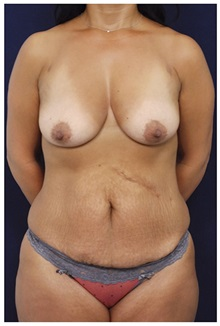 Body Contouring Before Photo by Michael Law, MD; Raleigh, NC - Case 35835