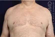 Male Breast Reduction After Photo by Michael Law, MD; Raleigh, NC - Case 42210