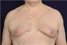 Male Breast Reduction Before Photo by Michael Law, MD; Raleigh, NC - Case 42210