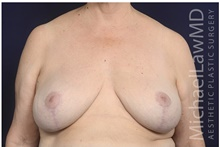 Breast Lift After Photo by Michael Law, MD; Raleigh, NC - Case 42211