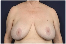 Breast Lift Before Photo by Michael Law, MD; Raleigh, NC - Case 42211