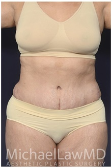 Tummy Tuck After Photo by Michael Law, MD; Raleigh, NC - Case 42212