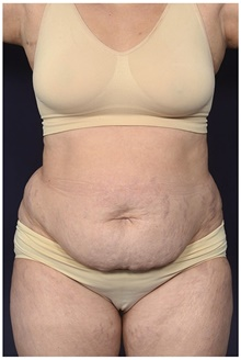 Tummy Tuck Before Photo by Michael Law, MD; Raleigh, NC - Case 42212