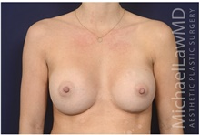 Breast Augmentation After Photo by Michael Law, MD; Raleigh, NC - Case 42238