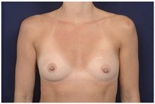 Breast Augmentation Before Photo by Michael Law, MD; Raleigh, NC - Case 42238