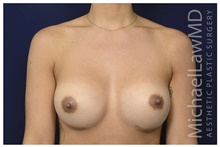 Breast Implant Revision After Photo by Michael Law, MD; Raleigh, NC - Case 42355