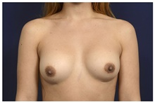 Breast Implant Revision Before Photo by Michael Law, MD; Raleigh, NC - Case 42355