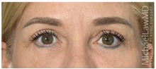 Eyelid Surgery After Photo by Michael Law, MD; Raleigh, NC - Case 42357