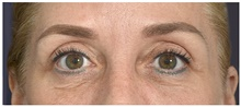 Eyelid Surgery Before Photo by Michael Law, MD; Raleigh, NC - Case 42357