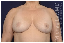 Breast Reduction After Photo by Michael Law, MD; Raleigh, NC - Case 42359