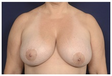 Breast Reduction Before Photo by Michael Law, MD; Raleigh, NC - Case 42359