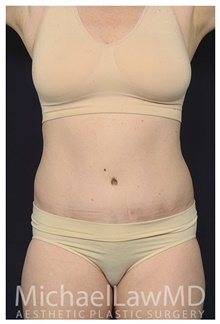 Liposuction After Photo by Michael Law, MD; Raleigh, NC - Case 42362