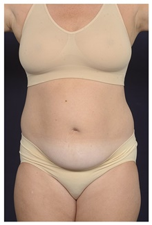 Liposuction Before Photo by Michael Law, MD; Raleigh, NC - Case 42362