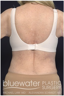 Body Contouring After Photo by Michael Law, MD; Raleigh, NC - Case 42363