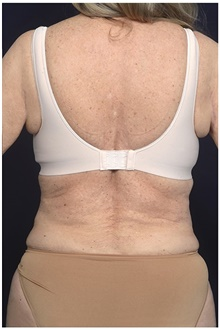 Body Contouring Before Photo by Michael Law, MD; Raleigh, NC - Case 42363
