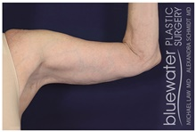 Arm Lift After Photo by Michael Law, MD; Raleigh, NC - Case 44476