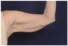 Arm Lift Before Photo by Michael Law, MD; Raleigh, NC - Case 44476