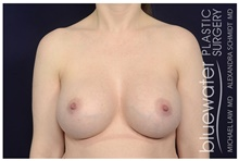 Breast Implant Revision After Photo by Michael Law, MD; Raleigh, NC - Case 44482