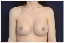 Breast Implant Revision Before Photo by Michael Law, MD; Raleigh, NC - Case 44482