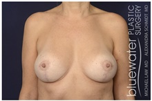 Breast Reduction After Photo by Michael Law, MD; Raleigh, NC - Case 44484