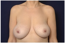 Breast Reduction Before Photo by Michael Law, MD; Raleigh, NC - Case 44484