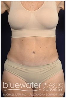 Tummy Tuck After Photo by Michael Law, MD; Raleigh, NC - Case 44485