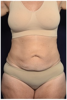 Tummy Tuck Before Photo by Michael Law, MD; Raleigh, NC - Case 44485