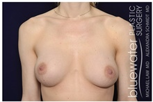 Breast Augmentation After Photo by Michael Law, MD; Raleigh, NC - Case 44487
