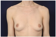 Breast Augmentation Before Photo by Michael Law, MD; Raleigh, NC - Case 44487