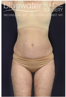 Liposuction After Photo by Michael Law, MD; Raleigh, NC - Case 44488