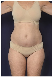 Liposuction Before Photo by Michael Law, MD; Raleigh, NC - Case 44488